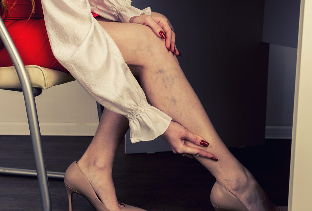 Painful,Varicose,And,Spider,Veins,On,Female,Legs.,Woman,Massaging
