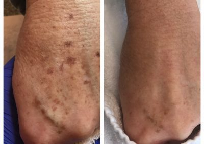 The photo on the left is before treatment. The photo on the right is five weeks later, after one treatment.