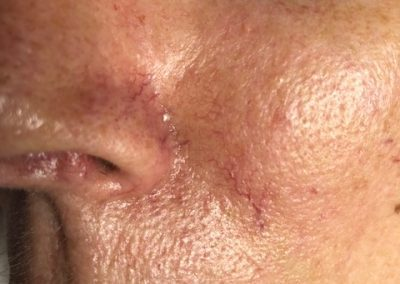 Photo 1: Our patient had several spider veins on her face