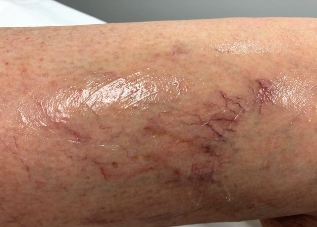 Just putting up with spider veins?